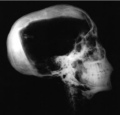 Radiograph of Tutankhamun's Skull