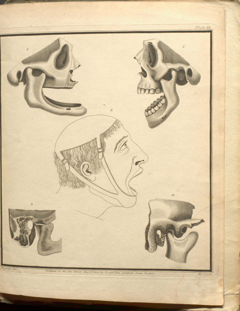 plate 5 SPEC Dental D0002