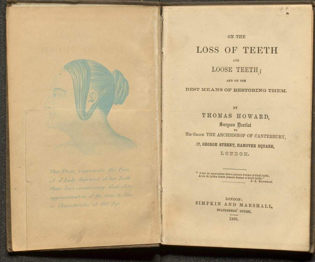 Before image without artificial teeth