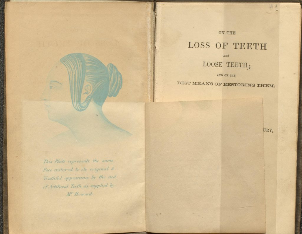 plate showing 'after' image with artificial teeth